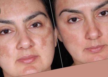 NuSkin FaceWash gel na pigmentove skvrny a flaky, zlava 40%